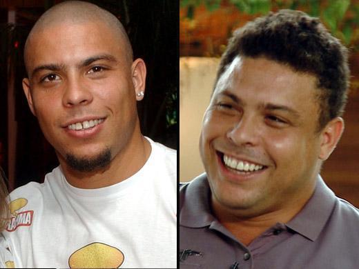 Ronaldo antes e depois